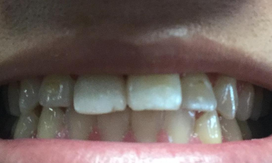 Emergency -Chipped tooth