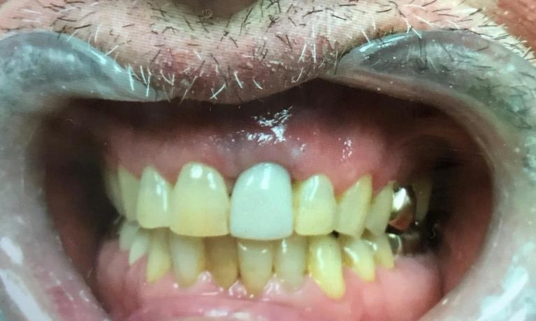 Implant crown, in this case few shade whiter than the rest of the patient's teeth. Pt is interested in bleaching the rest of his teeth to match his new implant tooth:)